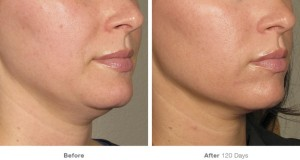 Ultherapy_B&A_Lower_Face